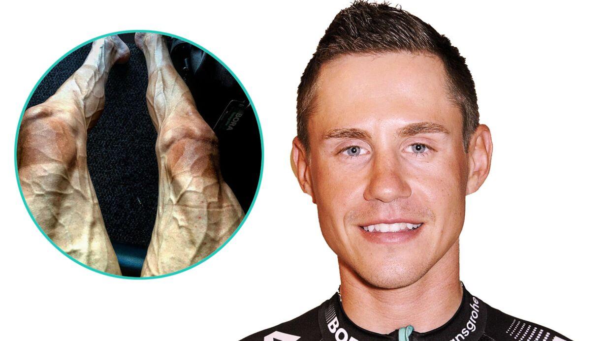 Un cycliste du Tour de France poste une photo de ses jambes après 16 étapes, ça fait peur à voir