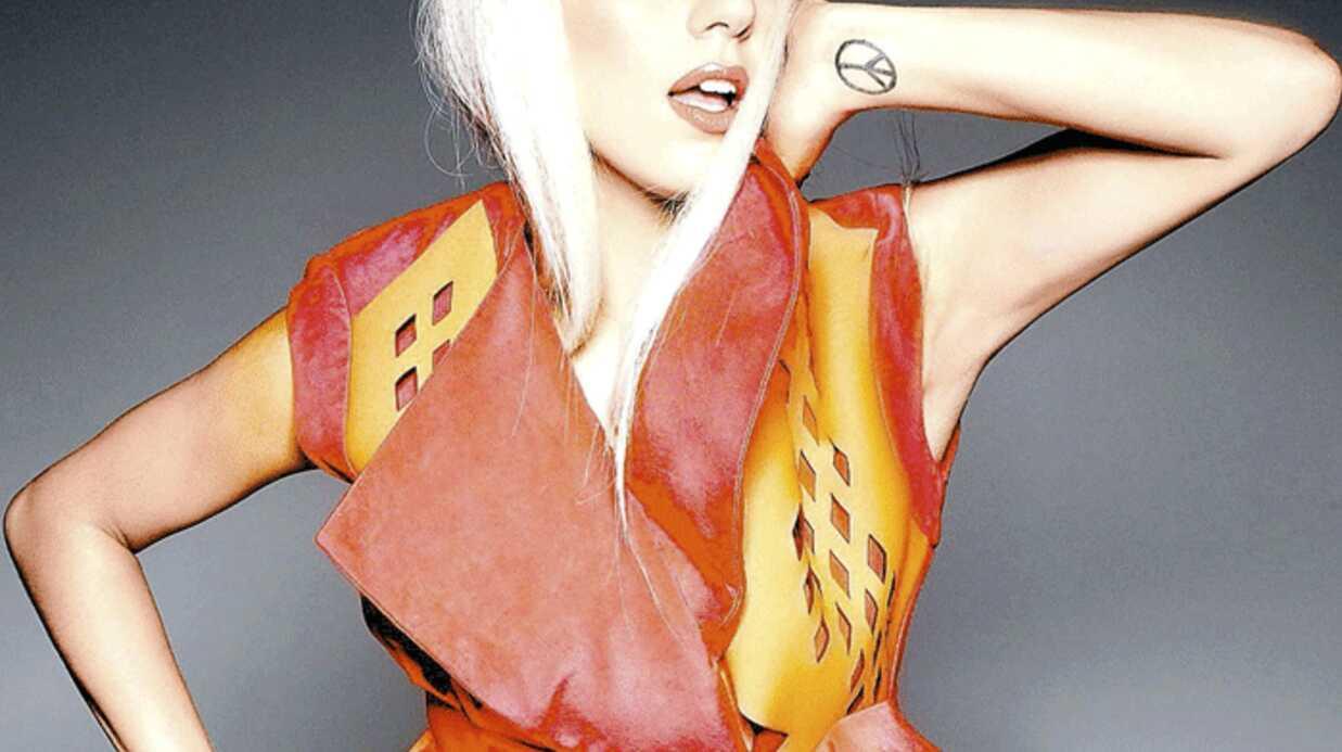 Lady Gaga gravement brûlée au bras