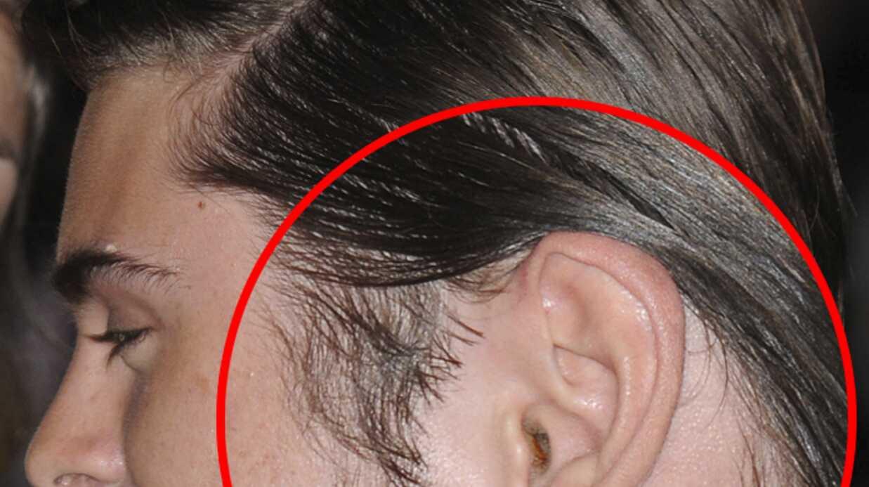 Zac Efron: les photos de son oreilles sales
