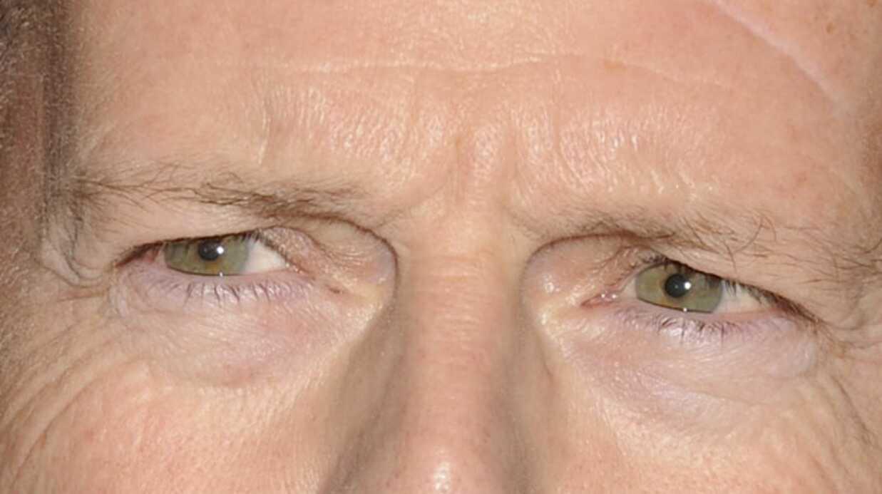 Bruce Willis victime d'un accident d'escalator