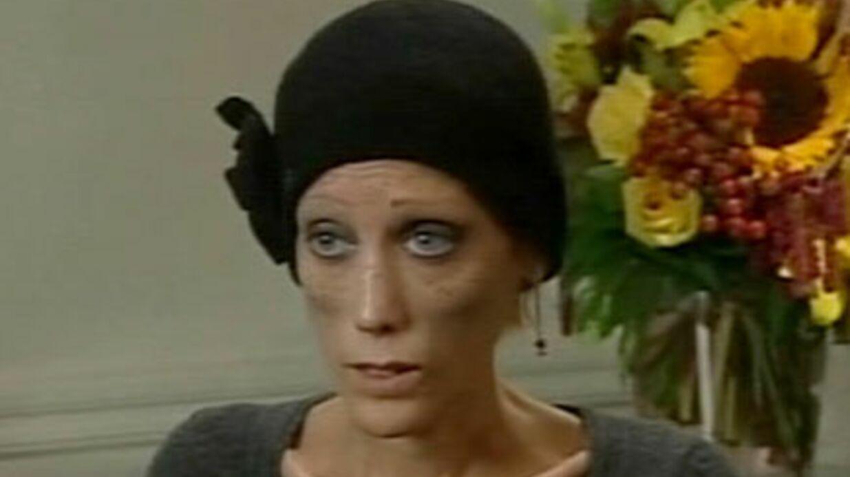 Décès d'Isabelle Caro, symbole de la lutte contre l'anorexie