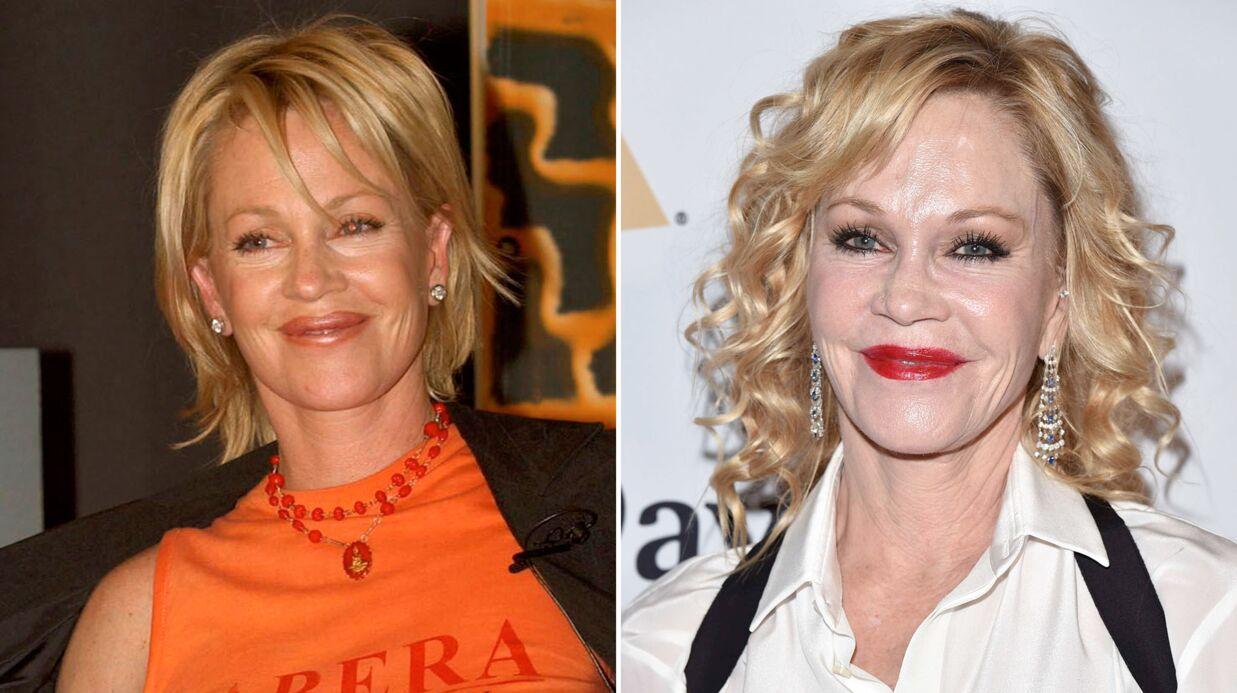 PHOTOS Avant/Après: ces stars qui ont VRAIMENT abusé de la chirurgie esthétique