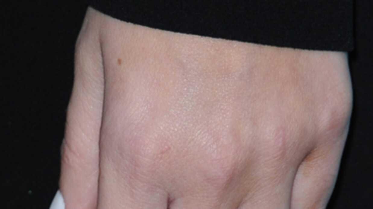 PHOTOS Khloe Kardashian a spectaculairement minci