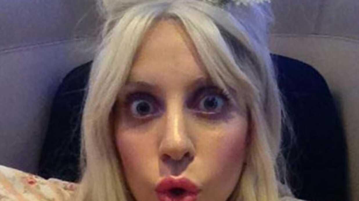 Après son opération, Lady Gaga est devenue accro au cannabis