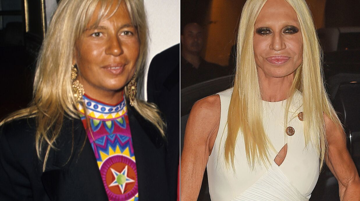 DIAPO Avant/après: les stars et la chirurgie esthétique, pour le meilleur et pour le pire