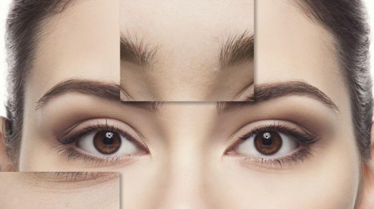 Face Mapping: ce que votre visage révèle sur votre santé