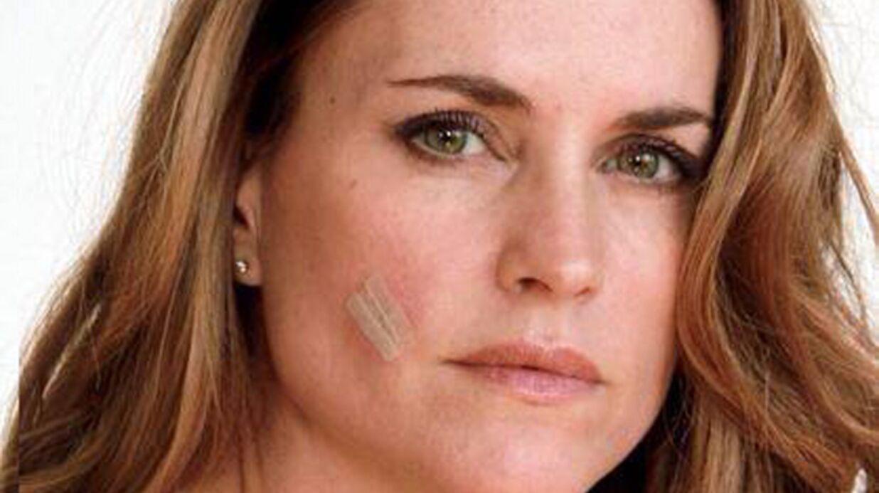 Carole Dechantre (Les mystères de l'amour): opérée pour son cancer de la peau, elle va mieux