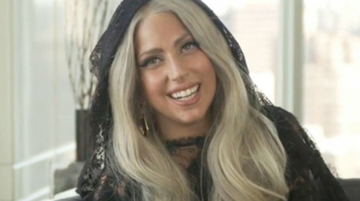 PHOTO Fatiguée, Lady Gaga expose sa blessure sur facebook