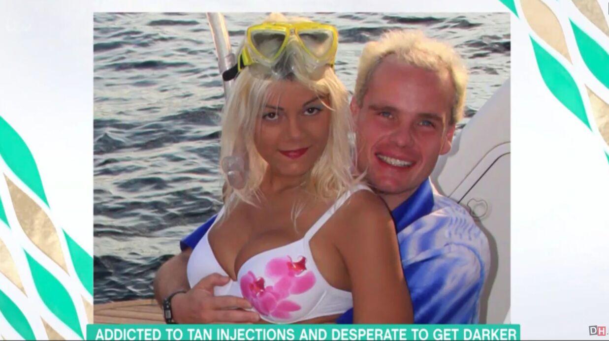 PHOTOS Seins énormes, injections de mélanine: une Allemande veut être une «Barbie exotique»