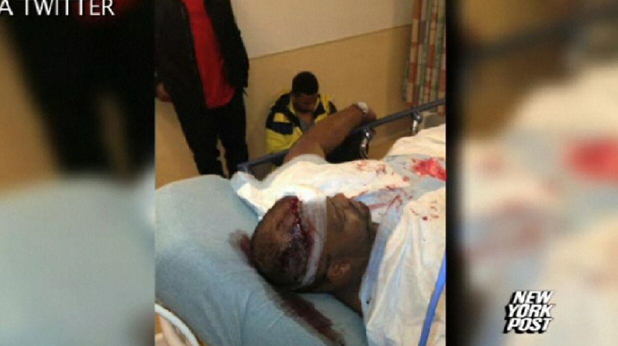 VIDEOS Tony Parker blessé dans la bagarre entre Chris Brown et Drake