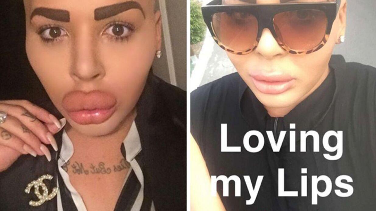 PHOTOS Jordan James Parke: le «sosie» flippant  de Kim Kardashian s'est fait dégonfler les lèvres