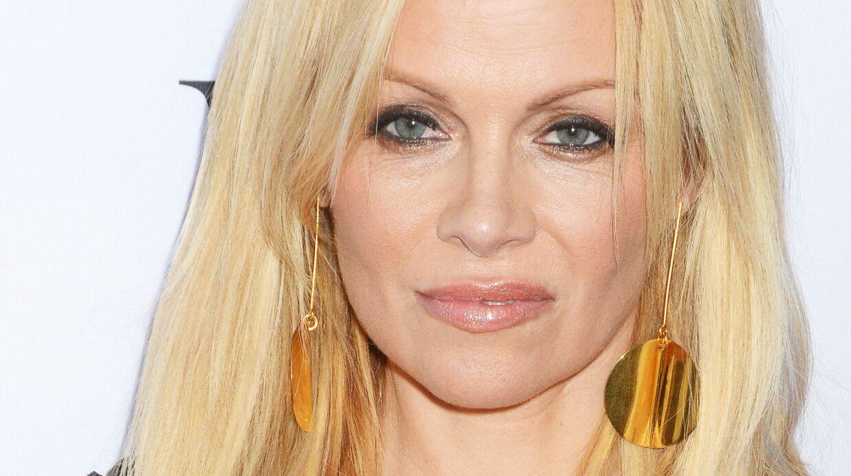 Pamela Anderson raconte sa mauvaise expérience avec la toxine botulique