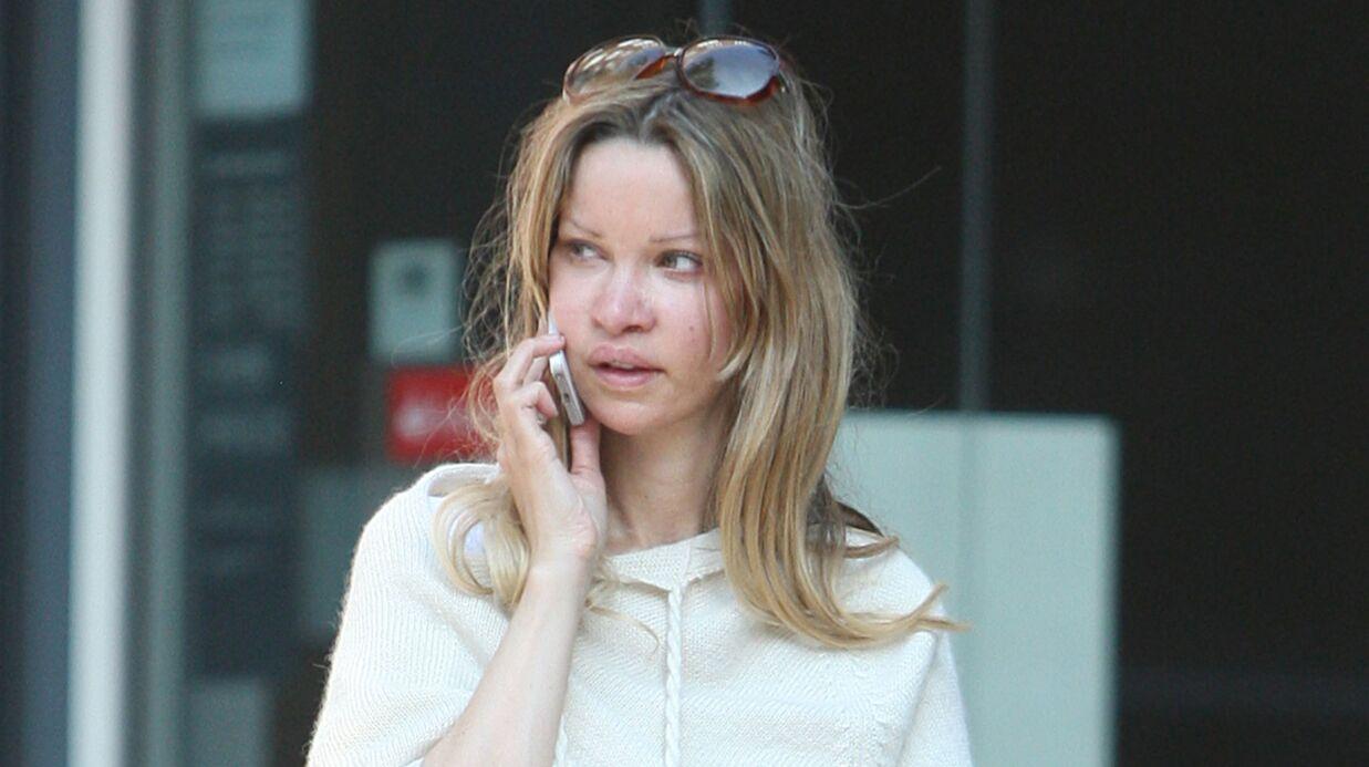 350 opérations: une starlette anglaise raconte comment son addiction à la chirurgie esthétique a gâché sa vie