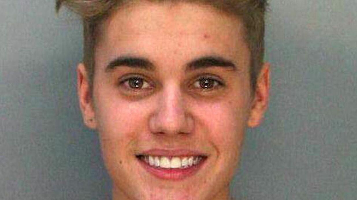 Justin Bieber: une marque de produits anti acné propose de l'aider après son mugshot