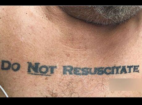Etats-Unis Son tatouage «Ne Pas Réanimer» à été suivi à la lettre, il est mort